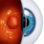 Eye with Macular Edema