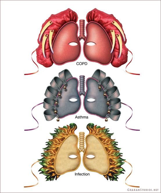 Concept Art of Masks as Lung Ailments
