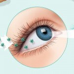 Restasis - Dry Eye Mechanism of Action