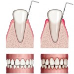 Illustration of Teeth with Stages of Decay