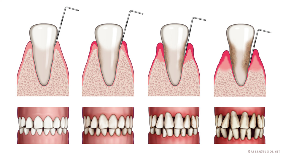 Illustration of Teeth with Stages of Decay | Graham Studios