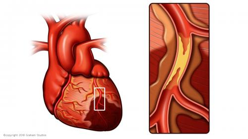 Heart with Occluded Vessel